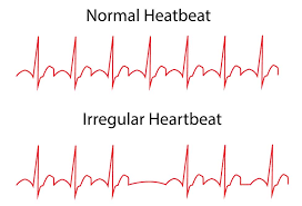what to know about arrhythmia ??