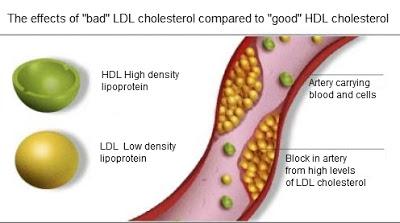Apa itu kolesterol tinggi ???