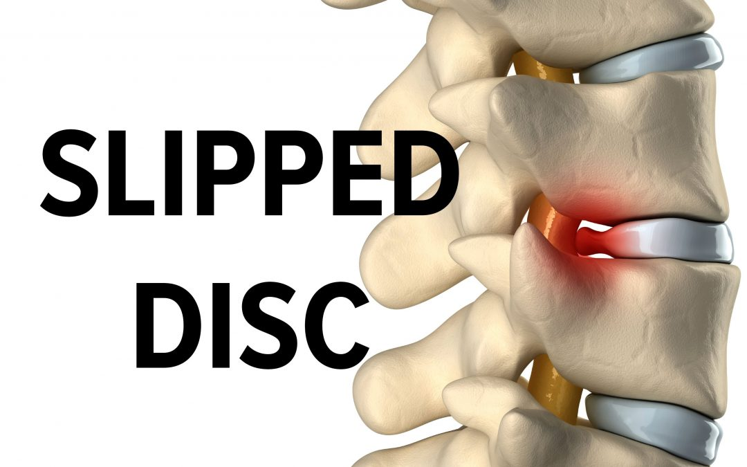 slip disc — symptoms,causes,effect .